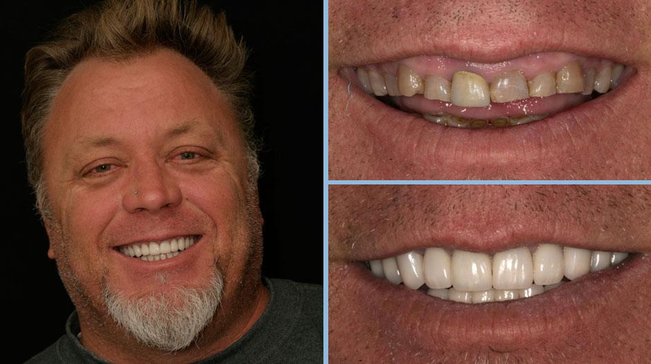4f51b103c5bf Antes e depois – Galeria de sorrisos : Dentista em Lisboa